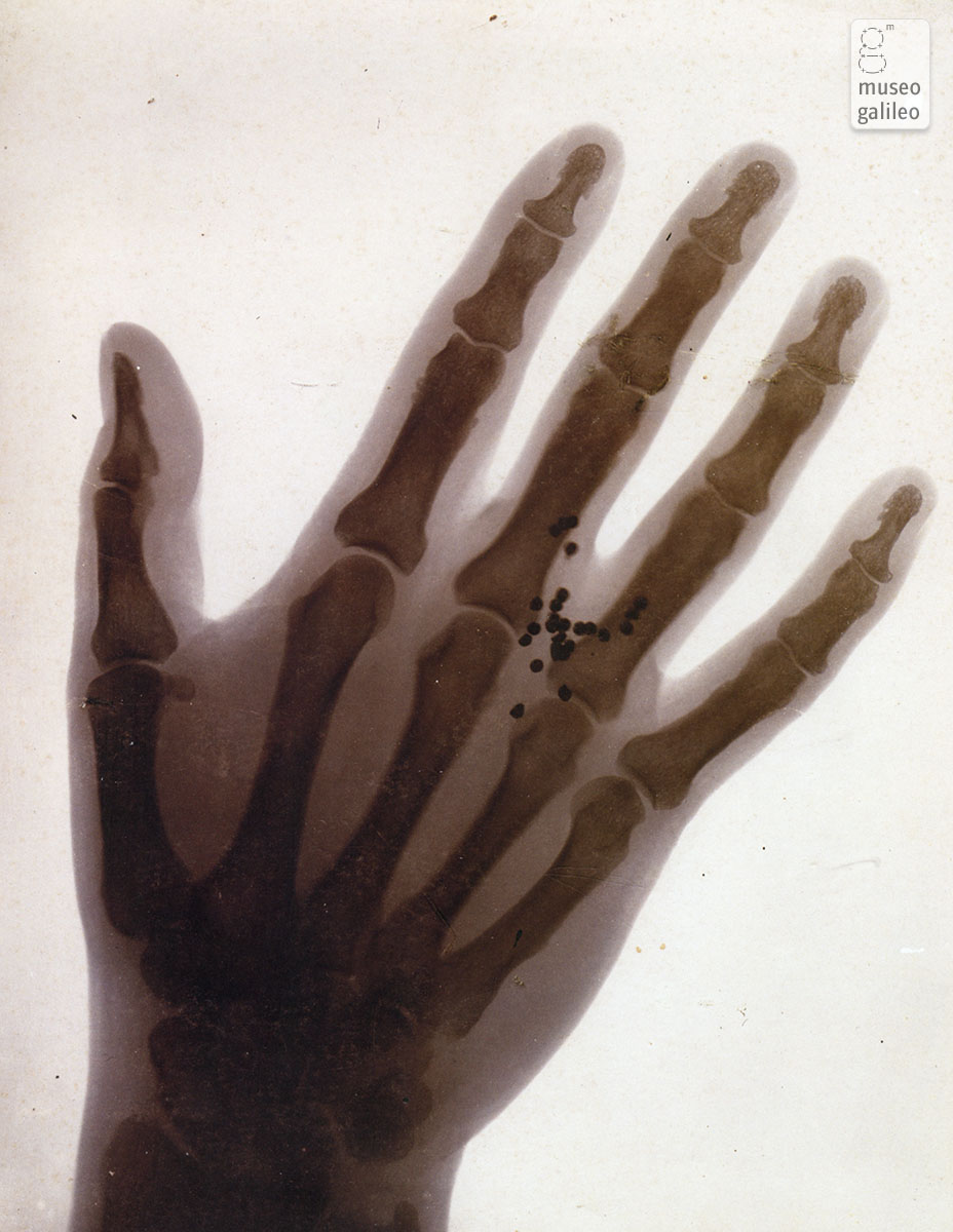 X-ray picture showing lead shots in a hand (1898)
